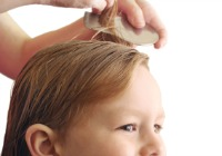 5 Things you need to know about head lice