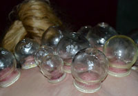 Cupping: Health fad or miracle cure?