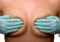 Latest breast augmentation surgery for moms