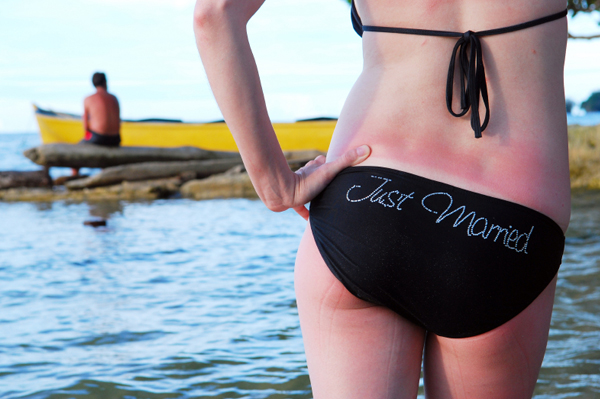Woman with bad sunburn