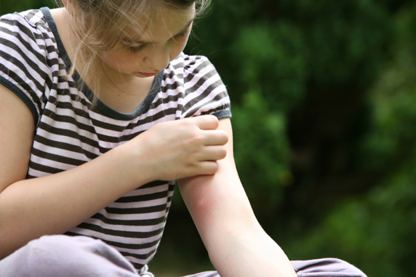 Preventing bug bites & rashes