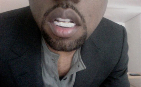 Kanye West diamond teeth