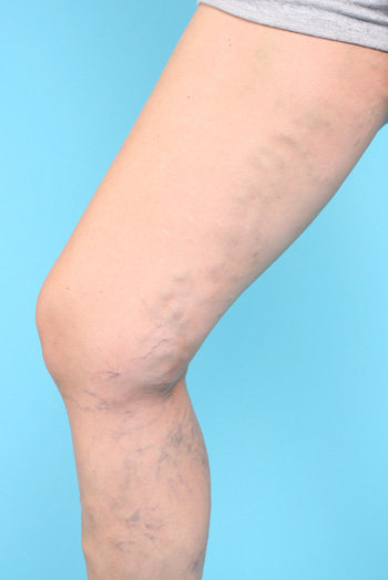 Varicose veins: Causes & treatments