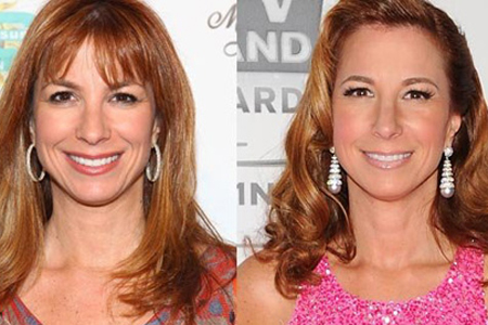 Jill Zarin plastic surgery
