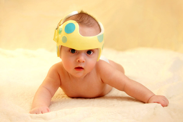 Baby with flat head helmet