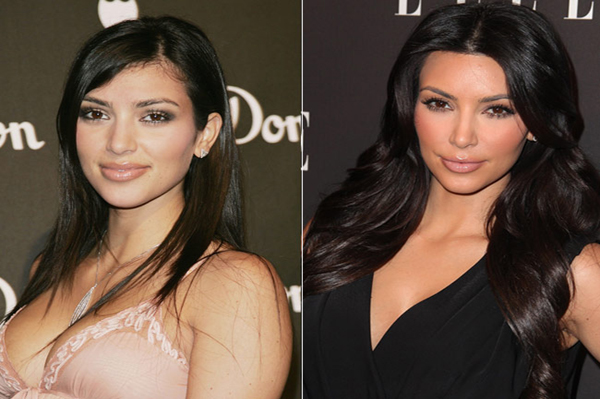 Kim Kardashian plastic surgery