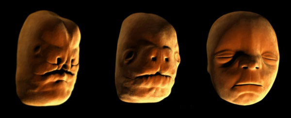 Facial development of 18 week fetus