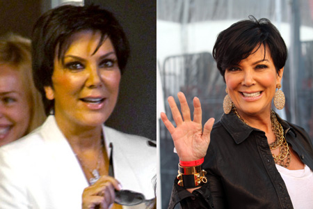 The media has been speculating about her plastic surgery, but no one ...
