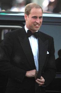 Prince William: Hair plugs?