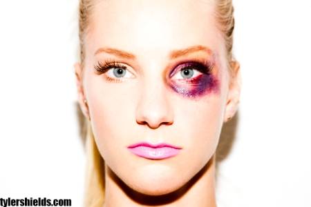Heather Morris black eye