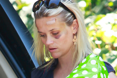 Reese Witherspoon black eye