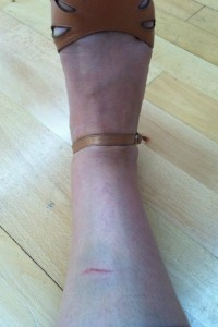Ricki tweets photo to fans of bruised shin