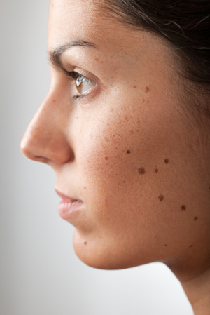 Use sunscreen to keep freckles and moles under control