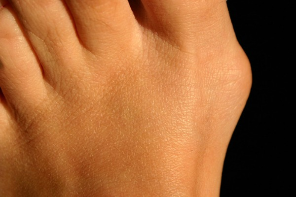 Foot pain from bunions