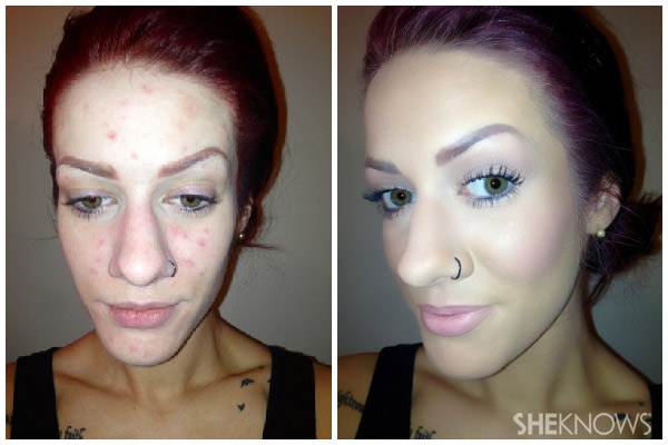 Skin before and after acne tutorial