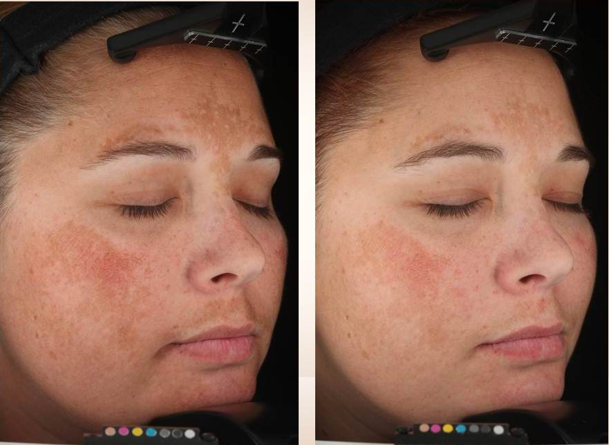 Melasma before and after Lytera treatment