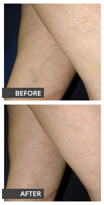 Spider vein laser treatment before and after photos