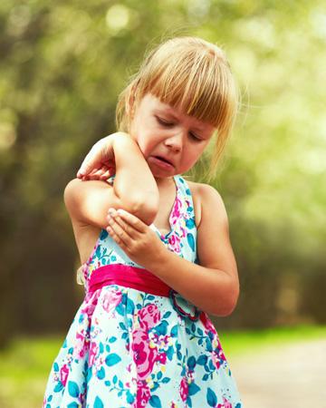 Little girl with summer bug bite
