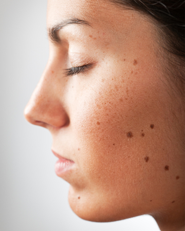 Woman with moles and freckles on face