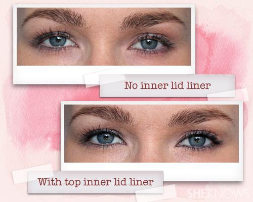 Line inner eyelid