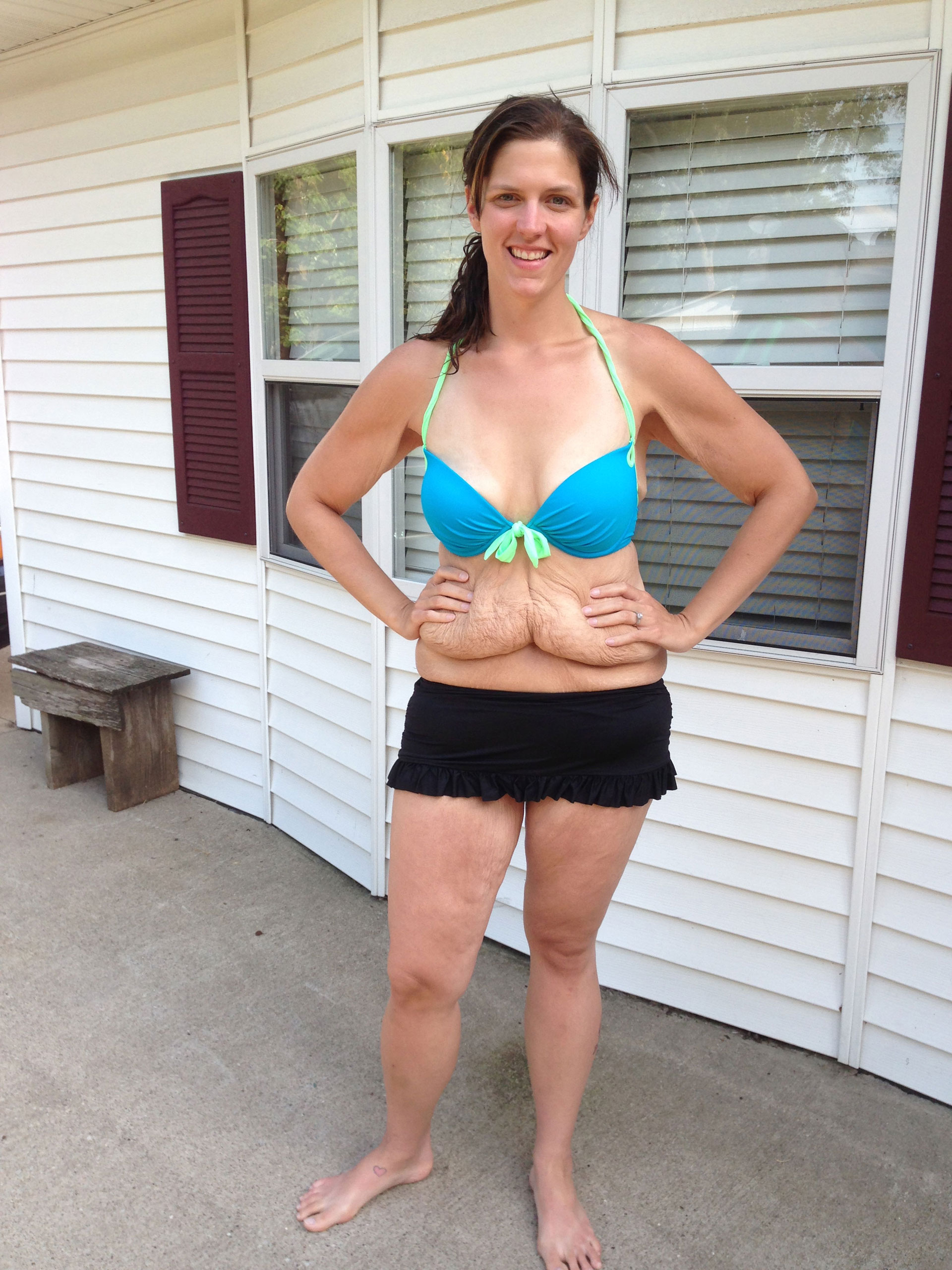 Woman 39 s rejected weight loss photo sparks body image debate