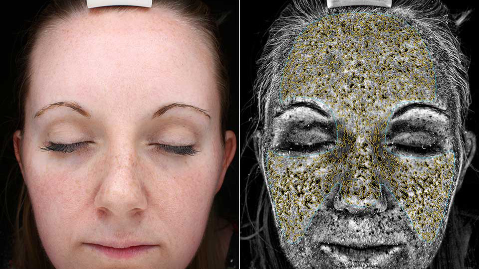 Camera documents skin sun damage