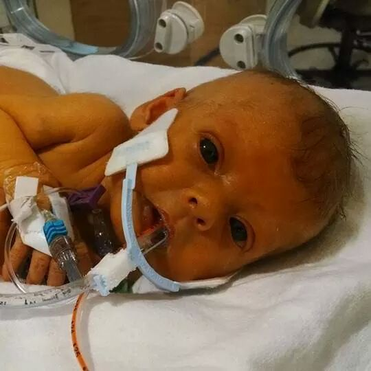 Parents wish to see terminally ill baby without tubes