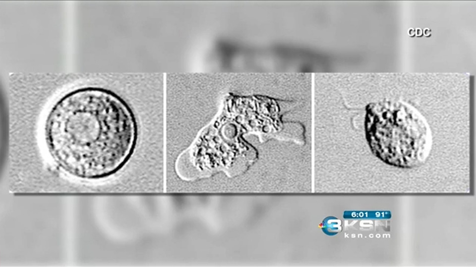 Girl Dies From Brain Eating Amoeba Here 39 S What You Need To Know