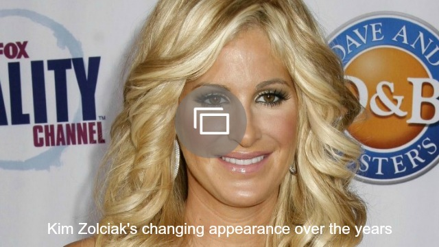 Kim Zolciak lives a life without secrets and after years of rumors, she's opening up about the plastic surgery she's had