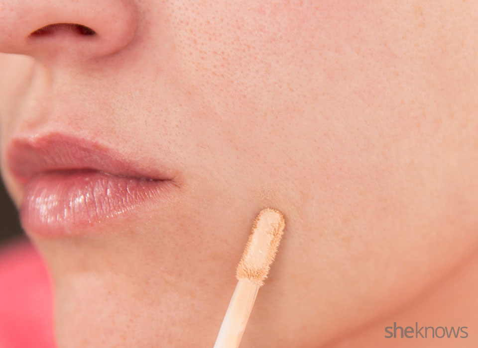 Make your acne scars invisible: Step 1