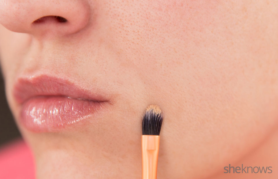 Make your acne scars invisible: Step 2