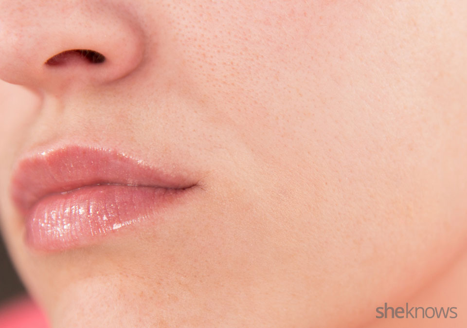 Make your acne scars invisible: Finished