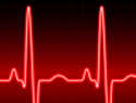 Signs of a heart attack: What you need to know