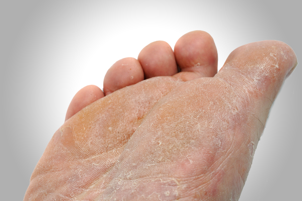 Athlete's foot requires treatment by a Houston podiatrist