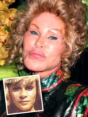 bad-plastic-surgery_Jocelyn-Wildenstein.