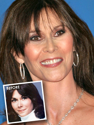 Kate Jackson had bad plastic surgery