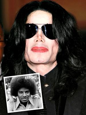 Terrible celebrity plastic surgery