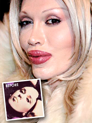 Pete Burns had bad plastic surgery