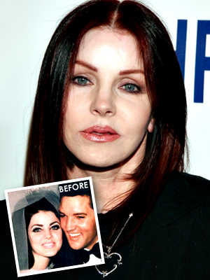 Priscilla Presley had bad plastic surgery