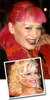 Gwen Stefani in braces and after braces