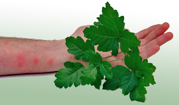 how to get rid of poison sumac rash