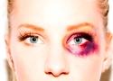 Who gave Glee's Heather Morris a black eye?