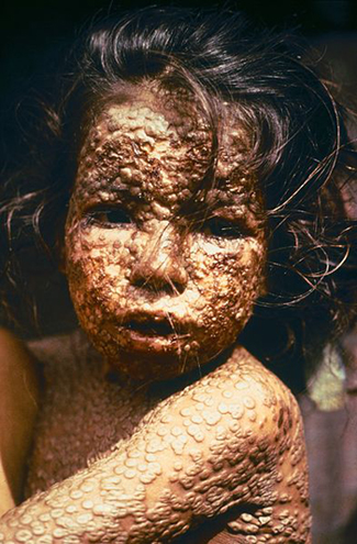 Little girl with smallpox