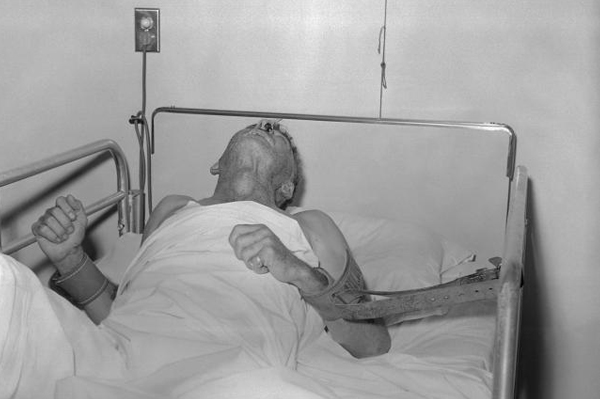 Man with rabies in 1959