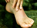 Foot cellulitis: More than just an ordinary skin infection