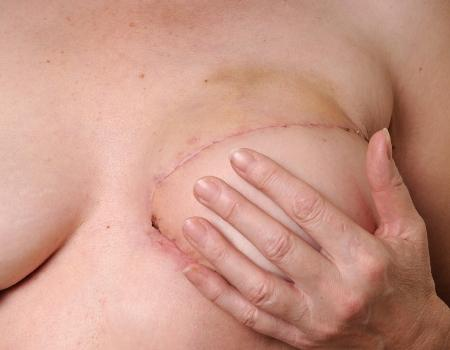 Breast cancer reconstructive surgery