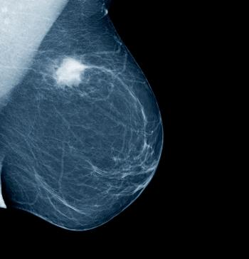 Mammography For Breast Cancer. Mammogram showing a breast