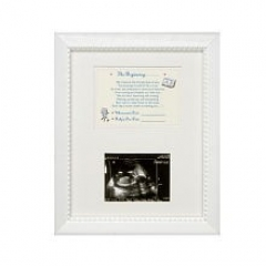 Ultrasound picture frame gift ideas ultrasound picture frame negle Images